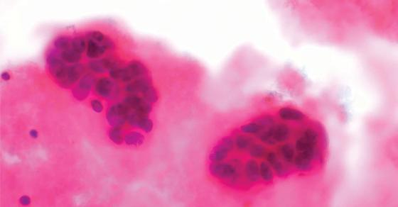 150915-origem-celular-cancer